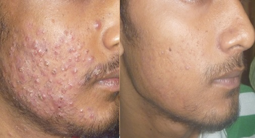 Significant improvements of acne after treatment with