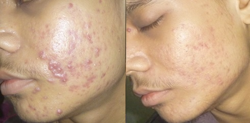 Significant Improvements Of Acne After Treatment With Homeopathic Medicines