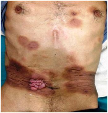 Gastric cancer umbilical nodule