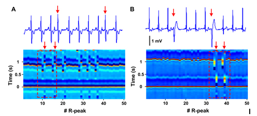 Electrocardiomatrix: A new method for beat-by-beat
