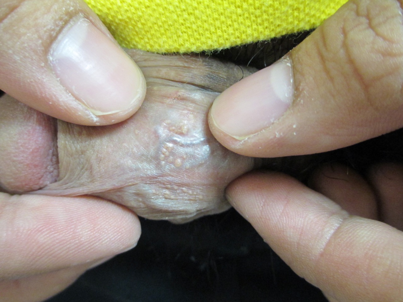 Fordyce spots on the glans penis