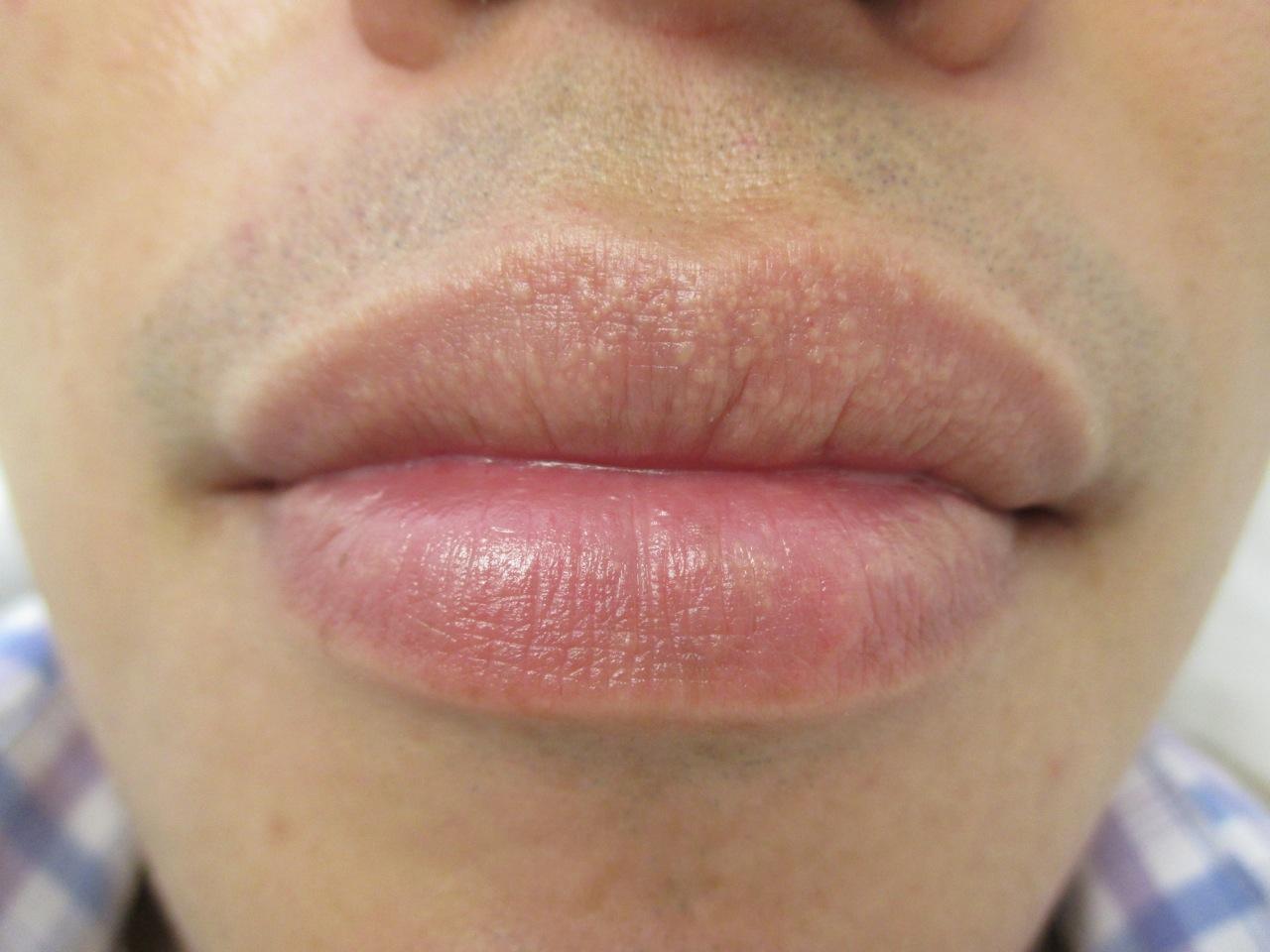 dark spot on my lip - pictures, photos