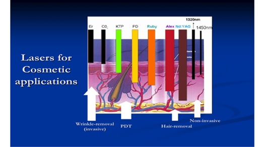 Progress Of Medical Lasers Fundamentals And Applications