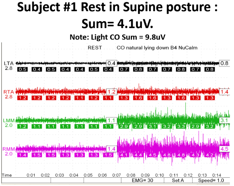 NuCalm brainwave entrained masseter muscle relaxation
