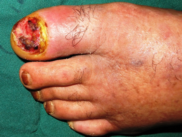 Squamous cell carcinoma of the toenail bed: a case report