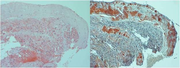 Cardiac amyloidosis: a case review series